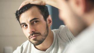 Hormone DHT: Nguyên nhân hói đầu ở nam giới